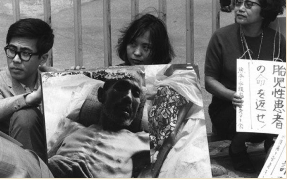Căn  bệnh Minamata gây ảnh hưởng nặng về tinh thần và thể chất của nhiều người - Ảnh: Internet