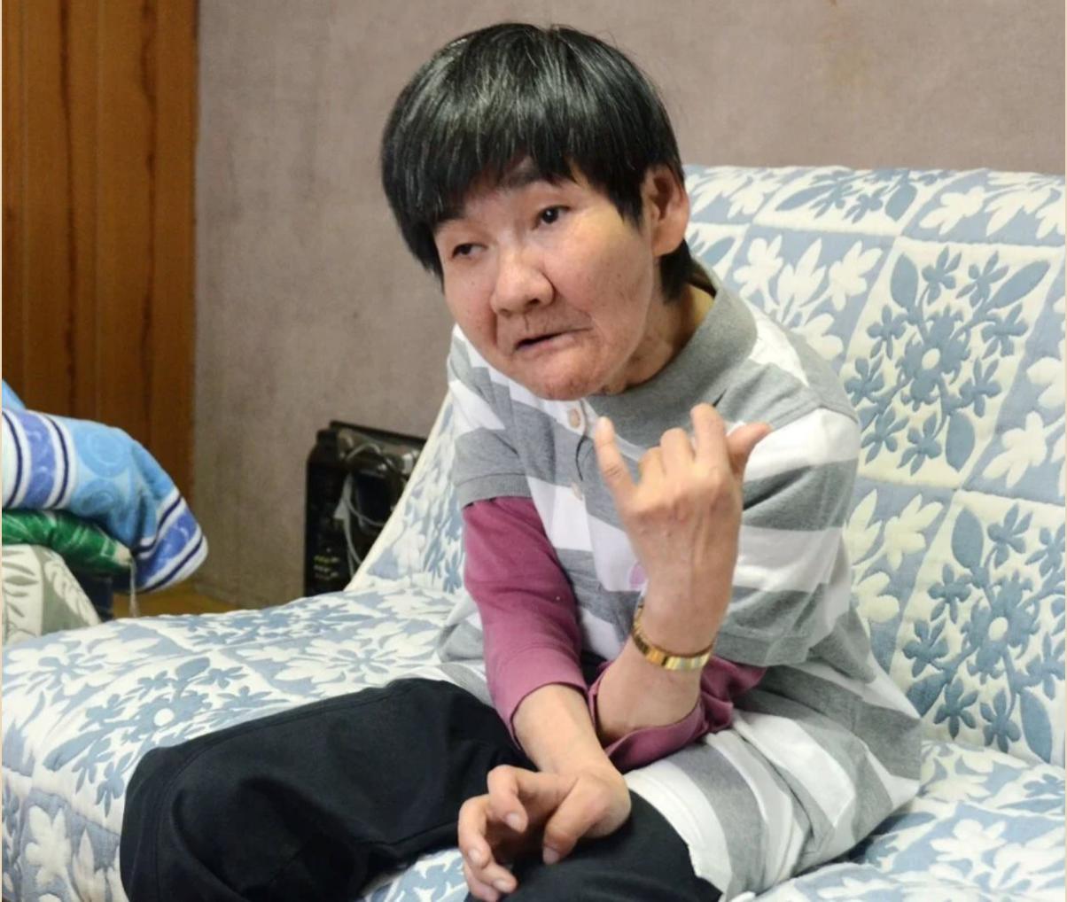 Shinobu Sakamotoo, một nạn nhân của vụ nhiễm độc thủy ngân - Ảnh: SCMP