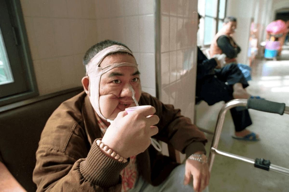 Một người đàn ông sau cuộc phẫu thuật cắt bỏ khối u trong khoang miệng - Ảnh: SCMP