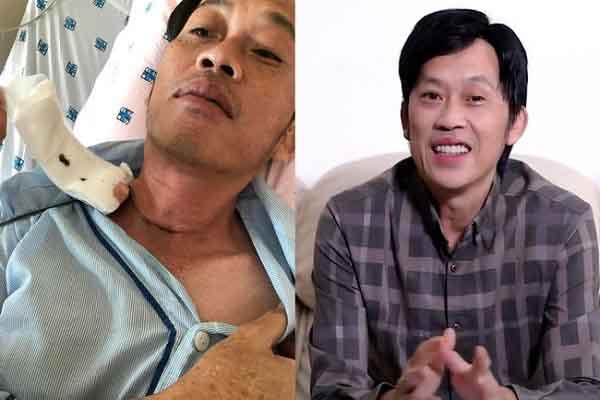 Giữa scandal 13 tỷ từ thiện, Nghệ sĩ Hoài Linh tiết lộ đang bị u tuyến giáp ác tính