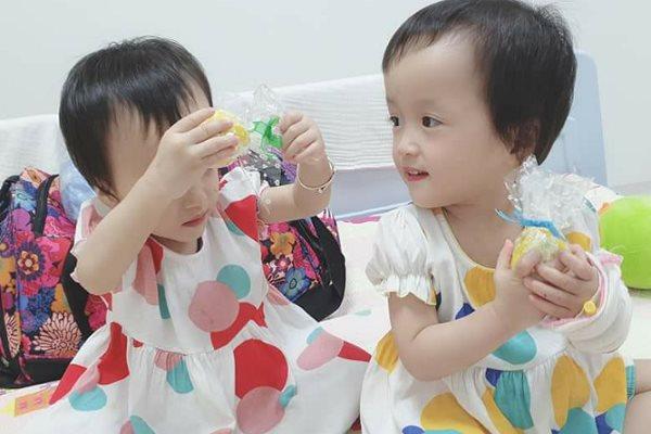 Bé gái cặp song sinh Trúc Nhi-Diệu Nhi đã phẫu thuật hoàn chỉnh đường tiêu hóa
