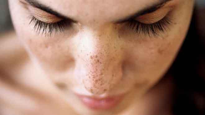 Hiểu về lão hóa da và cách chăm sóc cho đúng