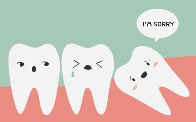 Biến chứng nguy hiểm từ răng khôn có thể bạn chưa biết