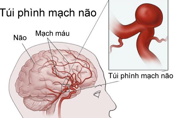 Triệu chứng của phình động mạch não, cần biết để đề phòng