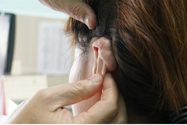 """Cô gái bị sẹo """"khổng lồ"""" vì bấm lỗ vành tai theo mốt"""