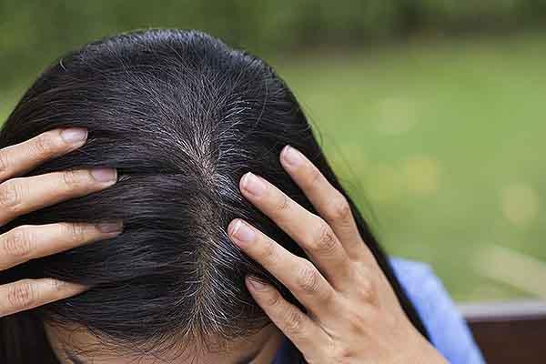 Nỗi lo tóc bạc sớm và cách khắc phục