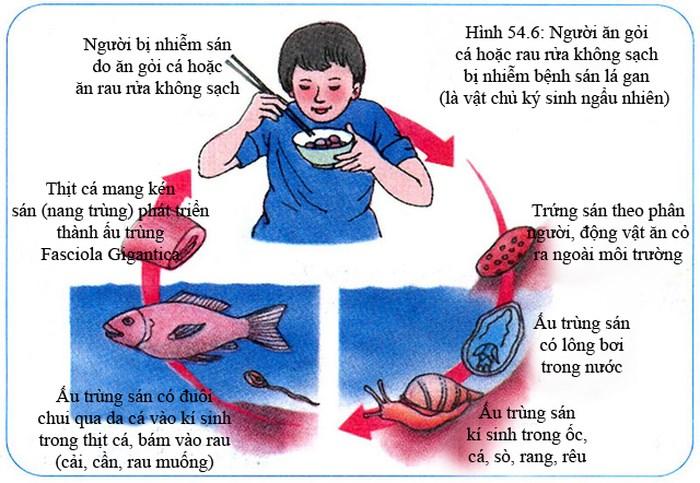 """Ăn gỏi cá với rau sống, người đàn ông """"nuôi"""" 800 con sán trong ống mật"""