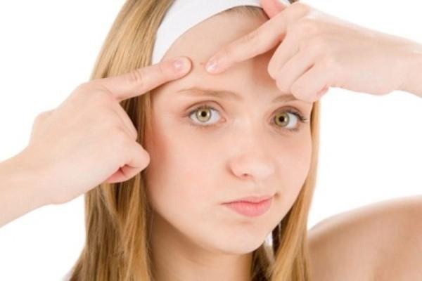 Nặn mụn đúng cách để không bị tổn thương da