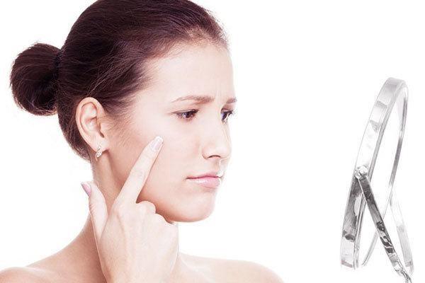 Cách đơn giản để làn da khỏe mạnh, sạch mụn