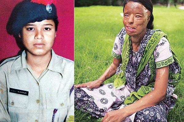 Cô gái Ấn Độ bị tạt axit tham gia 'Ai là triệu phú' để kiếm tiền phẫu thuật