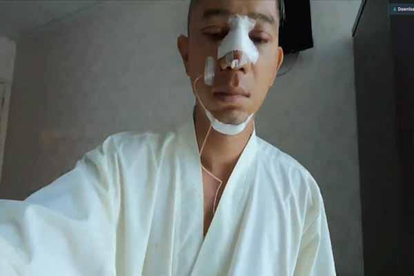 Ca sĩ Lương Bằng Quang dao kéo toàn bộ gương mặt ở tuổi 37