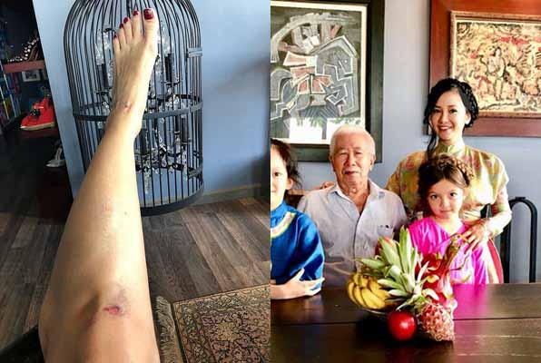 Ca sĩ Hồng Nhung bị tai nạn đầu năm mới