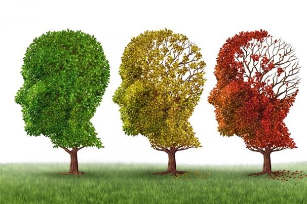 Mỹ chẩn đoán chính xác bệnh Alzheimer bằng thuật toán