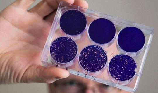 Dùng virus bại liệt để trị ung thư não