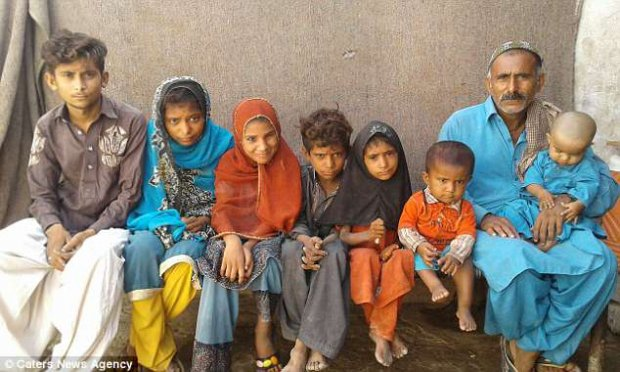 Bệnh bàn chân đá hành hạ bốn đứa trẻ trong một gia đình