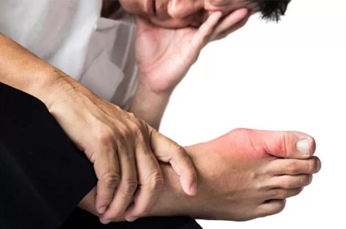 Bệnh gút và nguyên nhân bất ngờ bạn nên biết