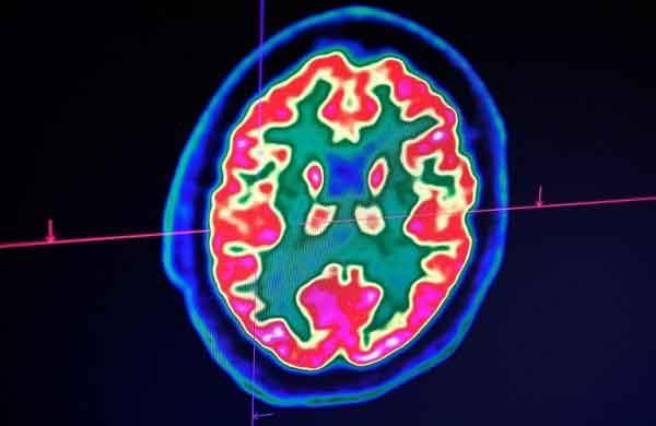 Bị COVID-19 nặng có thể tổn thương não