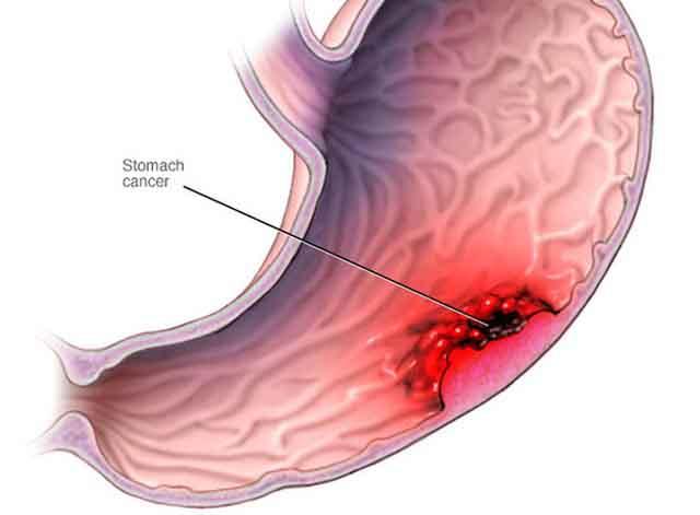 Những dấu hiệu cho thấy bạn có thể đã mắc ung thư dạ dày