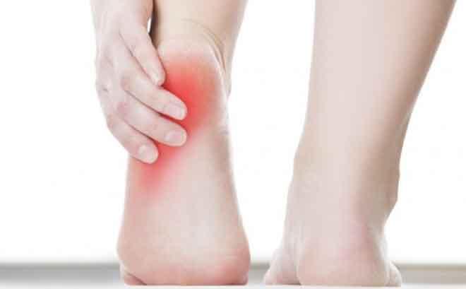 Bài thuốc trị bệnh gai gót chân