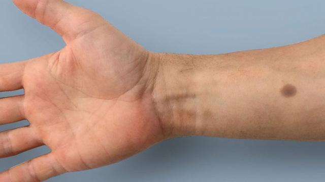 """Phát hiện ung thư sớm bằng việc cấy """"nốt ruồi"""" dưới da"""