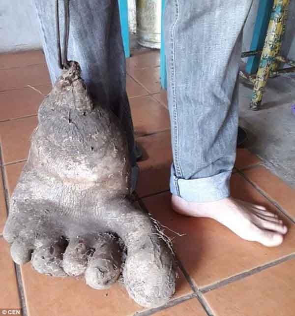 Kỳ lạ củ khoai tây mang hình bàn chân người