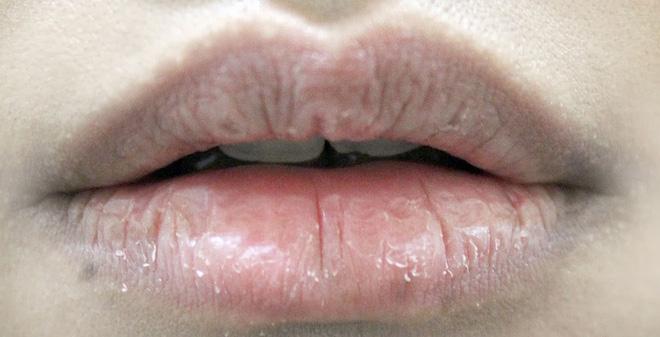 Giúp đôi môi không còn khô nứt