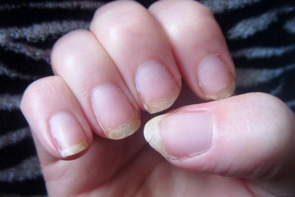 Dấu hiệu nhận biết bệnh từ móng tay