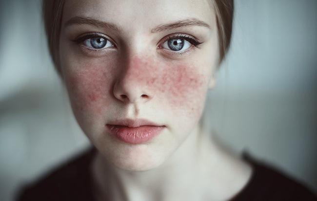 Ba căn bệnh nguy hiểm, dễ xuất hiện phái nữ nên lưu tâm
