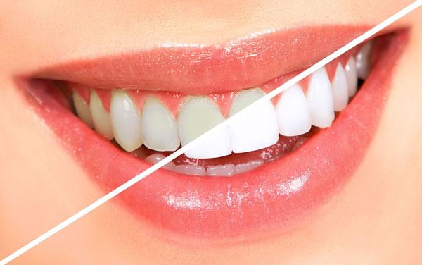 Giúp răng trắng đẹp
