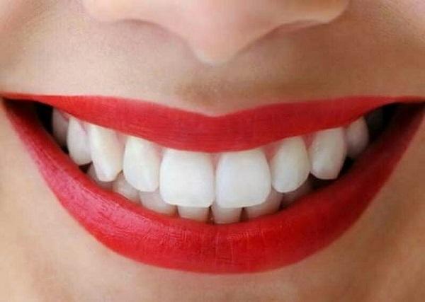 2 cách làm trắng răng cực đơn giản