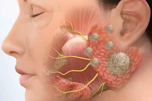 Những lưu ý về bệnh viêm tuyến nước bọt