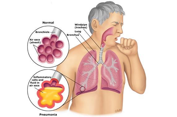 Bệnh viêm phổi - Bạn cần lưu ý những gì?