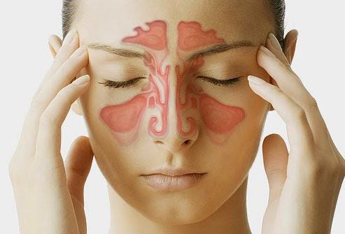 Người bị viêm xoang mũi, cần biết rõ những điều này