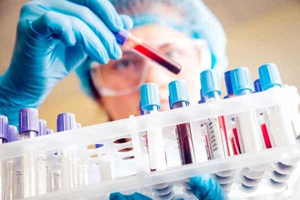 10 bệnh ung thư có thể được phát hiện nhờ loại xét nghiệm máu mới