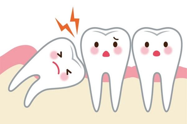 Biến chứng từ răng khôn nguy hiểm như thế nào?