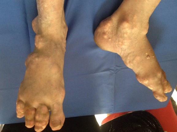 Tay chân biến dạng vì tự trị bệnh gout trong 10 năm