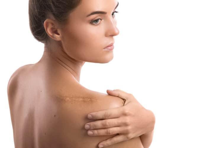 Cách khắc phục sẹo hiệu quả