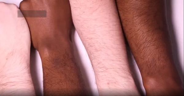 11 sự thật thú vị về làn da có thể bạn không biết
