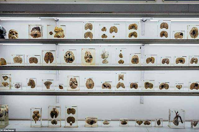 Khám phá Viện bảo tàng não, ai cũng cảm thấy rùng mình